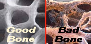 Good bones versus bad 'MILK' bones